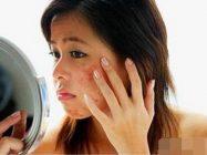 化妆品过敏面部起红疹子,原来是激素依赖性皮炎!