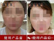 激素脸排毒方法 激素依赖性皮炎治愈案例