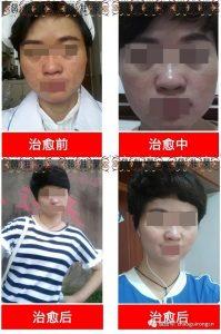患者现身说法看赵桂荣效果怎么样?