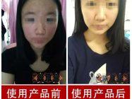 用化妆品引发的激素依赖性皮炎 如何排毒才能恢复以前皮肤