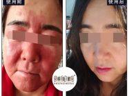 亲身经历激素脸修复过程 分享给大家希望能有所帮助