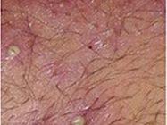 得了激素依赖性皮炎 真想换层皮