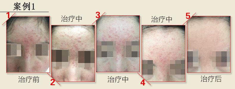 过敏引发激素依赖性皮炎?春季怎么避免皮肤过敏造成激素脸?