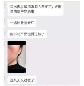 5种肌肤信号直指【激素脸】,现在不注意,小心皮肤萎缩!