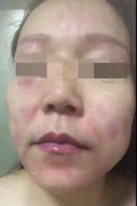 化妆品护肤品使用过度后——烂脸!!!,停用就会起痘发红怎么办