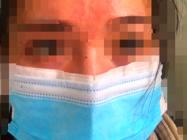 干货:戴口罩憋出痘痘?原来是祛斑后形成的面部激素依赖性皮炎!