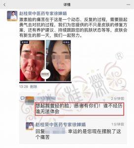 【赵桂荣】激素脸康复案例:曾经的脸太吓人 真人实例