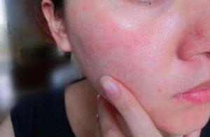 夏季皮炎来袭,多人中招!更可怕的是,一年致敏年年痒!