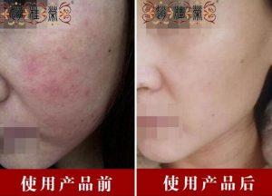 激素脸修复 激素脸能治愈!为什么不能自愈
