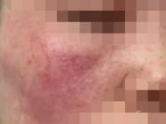 使用激素药膏后就得了激素脸,现在又丑又难受怎么破!