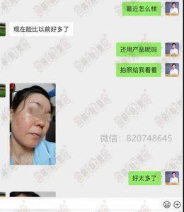 赵桂荣:治好激素依赖性皮炎,还原您皮肤原本的美