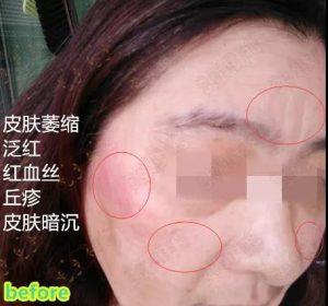 激素脸使用赵桂荣时皮肤有哪些感受?_赵桂荣吧