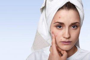脸上长小红疙瘩还痒 改善敏感肌不做薄皮女人