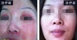 脸过敏,红肿爆痘,差点烂脸的真实原因!脸过敏是否为激素脸