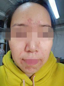 【图片】激素脸赵桂荣,这是我激素脸的过程,因为皮肤好了心情好了