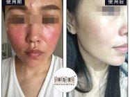 过敏皮救星! 激素皮炎用特护霜修复皮肤屏障就行了吗?