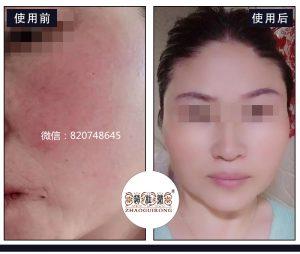 从激素脸红热干痒,到皮肤白皙光滑,她一直在坚持这件事!