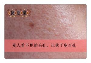 激素脸是什么?真人案例告诉您,激素脸怎么治疗修复好!