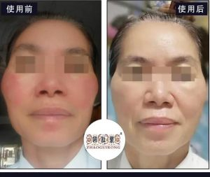 最新激素脸恢复案例