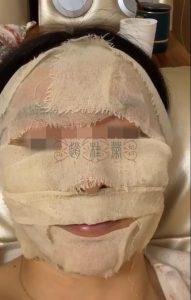 """激素脸脸过敏修复3天了:""""我现在感觉非常好,感觉毛孔堵塞通顺了些"""""""
