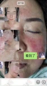 【案例分享】外敷赵桂荣原液,调理激素脸30天:皮肤变化观察