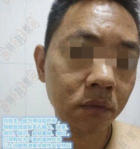 痘印、毛孔粗大、囊肿的激素脸修复案例