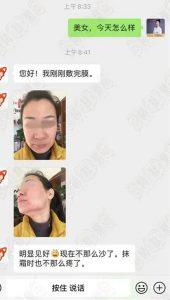 【治疗案例】激素脸不断好转,不痒了!看看她是怎么做到的~