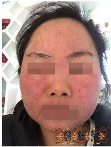 【治疗案例】修复激素脸70天后,看看她的皮肤变化